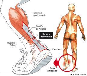 Patología del Tendón de Aquiles